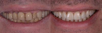 dentiste messiaen cabinet dentaire esth tique blanchiment facette tournai belgique. Black Bedroom Furniture Sets. Home Design Ideas